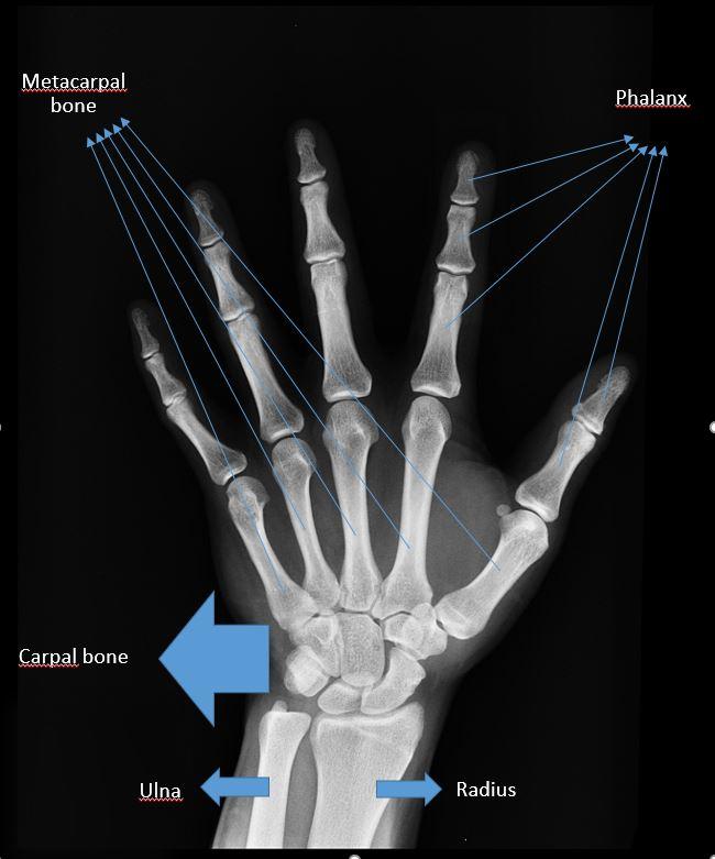Hand Anatomy | Anatomy-Logia