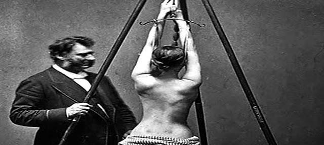100 साल पहले डॉक्टर ऐसे करते थे मरीजों को इलाज, देखकर हिल जाएंगे