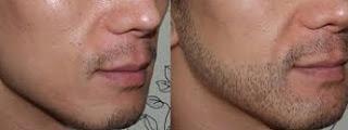 sakal ektirme fiyatları