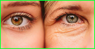 How To Get Rid Of Under Eye Wrinkles With 2 Handy Ingredients. Plain And Simple | Wellness Food Team