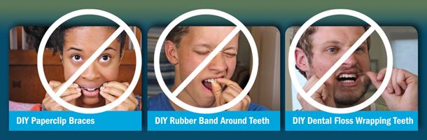 Wentz Orthodontics: Don't Do It Yourself