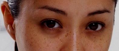 kulit hitam melingkar dibawah mata