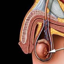 las varices en los testiculos