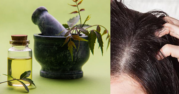 How to Get Rid of Dandruff with the Best Natural Treatment at Home
