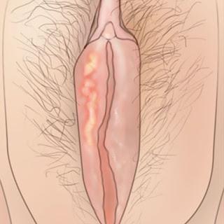 kelamin lecet pada wanita