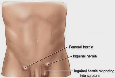 The Health Website Inguinal Hernia