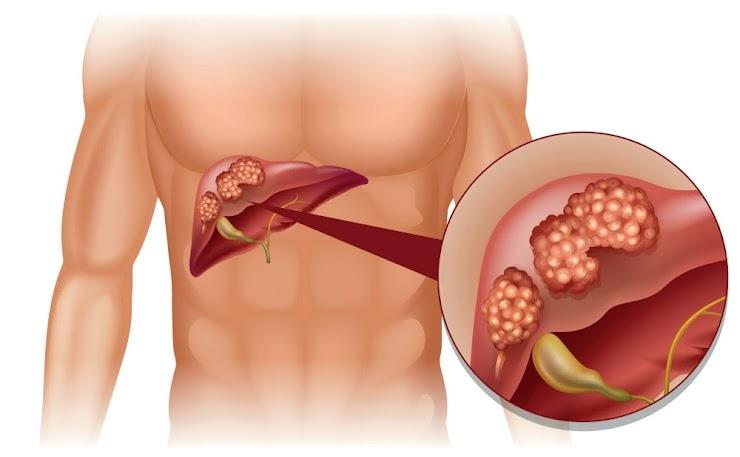 Final Symptoms of Liver Cancer