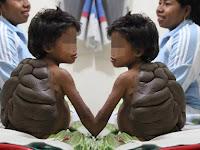Dokter Berhasil Hilangkan Tahi Lalat Tak Normal Seperti Tempurung Kura-kura Pada Anak Ini