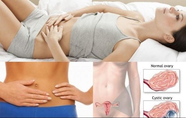 Tác hại của u nang buồng trứng ở phụ nữ