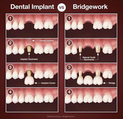 Post dental implants