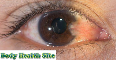 Understanding Pterygium, Symptoms, Causes, Diagnosis, Treatment and Prevention