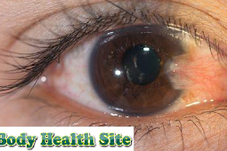 Definition of Pterygium, Symptoms, Causes, Diagnosis, Treatment and Prevention