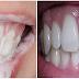 Oleskan Pada Gigi dan Diamkan Beberapa Menit, Gigi Putih Bersih Bebas Bau Mulut Sepanjang Hari