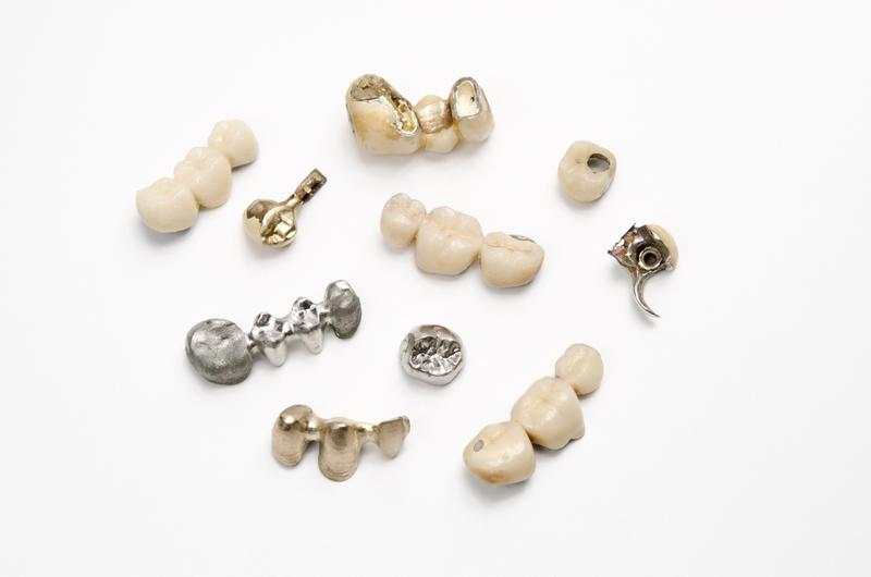 假牙之家: 假牙材質 - 基本合金及鈦合金