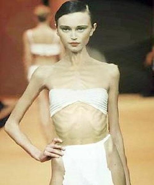 Anoreksia Nervosa, Diet Yang Beresiko Kematian