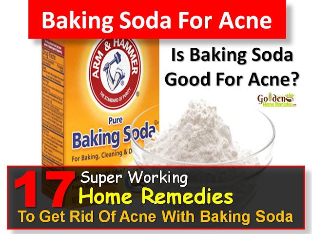 Baking Soda For Acne, Baking Soda Acne, Baking Soda And Acne, Is Baking Soda Good For Acne, How To Get Rid Of Acne With Baking Soda, How To Use Baking Soda For Acne, How To Treat Acne With Baking Soda, Acne Treatment With Baking Soda