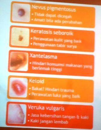 Perawatan Kulit/ Kanker Kulit di RSU Bunda Jakarta ~ RADAR ...