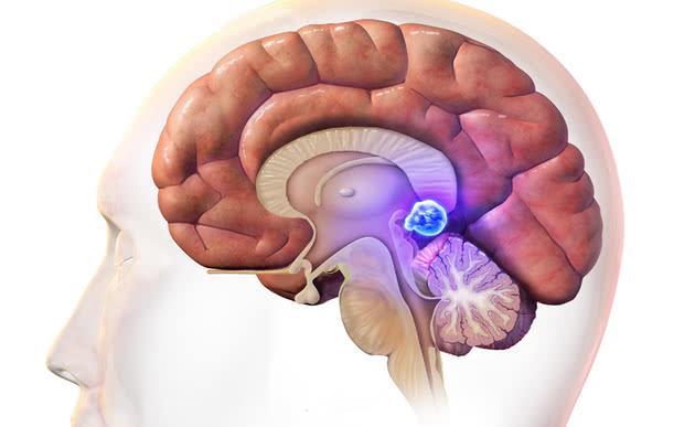 'Con mắt thứ ba'(P2): Thực tế não của những người đặc biệt có một con mắt
