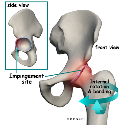 csípőkezelés rheumatoid arthritis az ízületek stressztől szenvednek