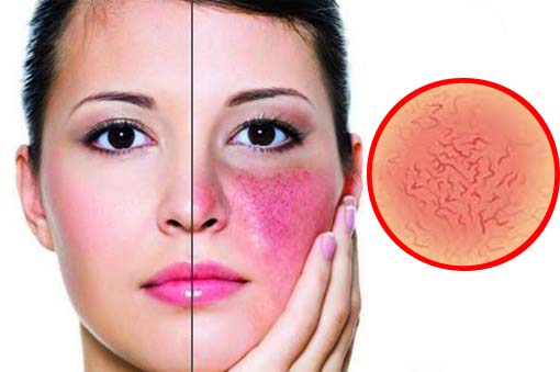 Natural Treatment Of Rosacea Is An Alternative To Pharmaceutical