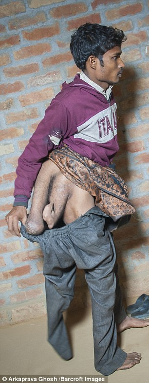 Photos Indian Man Born With 4 Legs Begs Doctors To -3485
