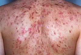 Acne On The Back