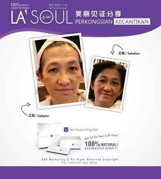 testimoni la' soul lifting gel 9