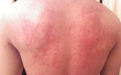 urticaria on back