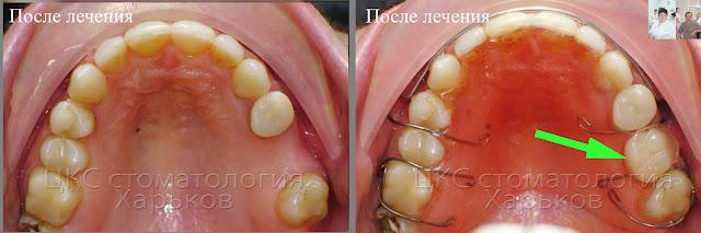 Съемный пластиночный ретейнер с искусственным зубом