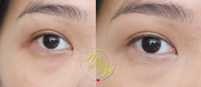 before and after photo using Flormar Perfect Coverage Liquid Concealer Review in Soft Beige