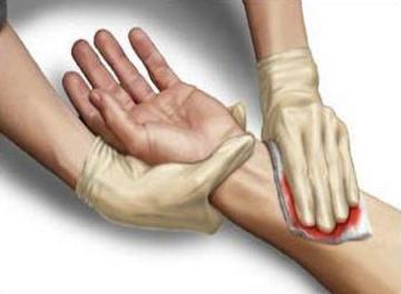 الجروح والنزيف  هل النزف من مختلف أنواع الأوعية الدموية متساو؟