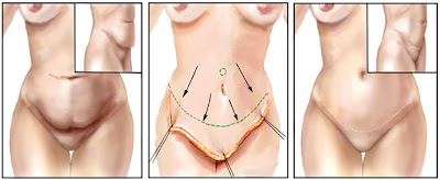 Tummy tuck / Abdominoplasty by Dr Srinjoy Saha betters shape and contour of abdomen with hidden scars.