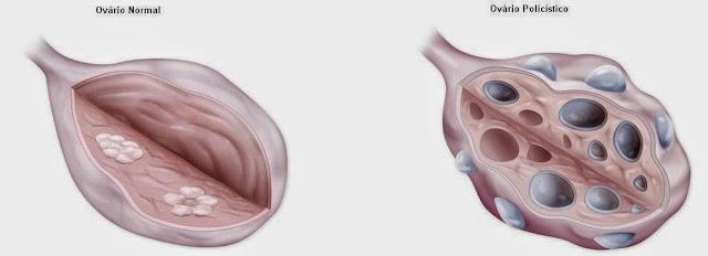 Resultado de imagen de HOMA ovarios poliquisticos