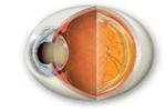 Globo ocular cuyo cristalino está afectado de cataratas