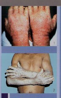 Dermatitis alérgica de contacto en un albañil