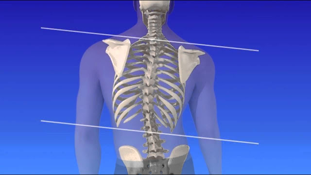 Scoliosis Causes and Symptoms