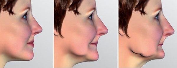 Jika anda pernah punya problem gigi sampai harus mencabutnya 5 Alasan Gigi Rusak Dicabut Mesti Diganti Gigi Tiruan