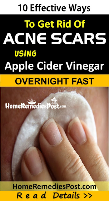 How To Use Apple Cider Vinegar For Acne Scars - Home