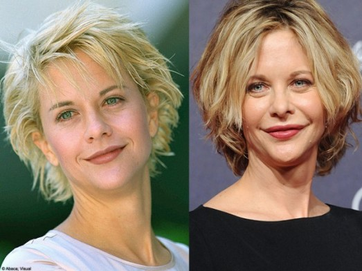 Meg Ryan Plastic Surgery Disaster Celebrity Plastic
