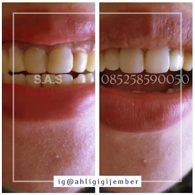 Hasil perbaikan service renovasi tambalan gigi