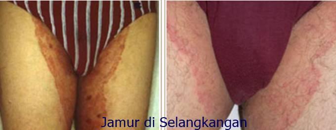 Obat Untuk Gatal Infeksi Jamur Pada Selangkangan dan Sekitar Kemaluan Di Apotik