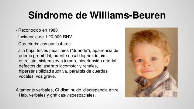 El Síndrome De Williams Libertad De Expresión Yucatán Ley