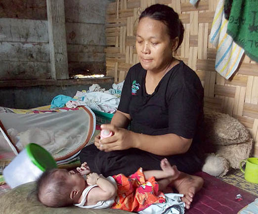 Zikri balita penderita gizi buruk asal Tanjungbalai bersama ibunya.