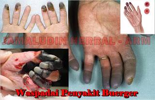 http://tilupuluhherbal.blogspot.co.id/2018/03/obat-herbal-untuk-mengobati-penyakit.html