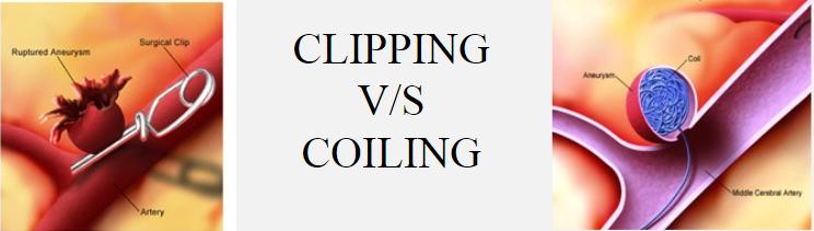 図:クリッピングとコイリング