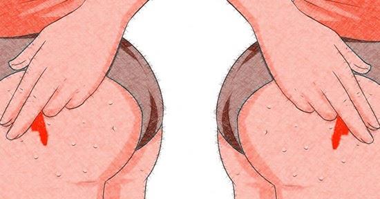 """"""" ထိုင္မရ ထမရေရာဂါ """" (Boils at buttock)"""