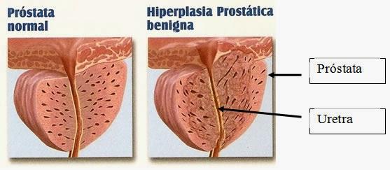 próstata inferior