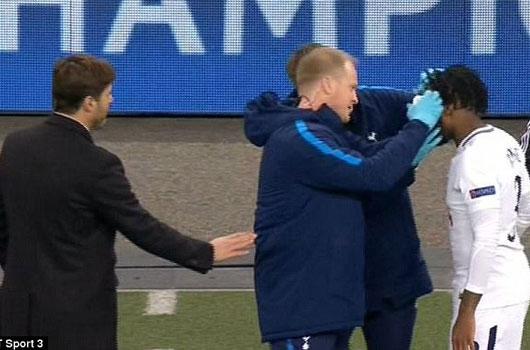 Sao Tottenham công khai bật Pochettino