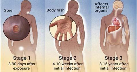 Syphilis Symptoms