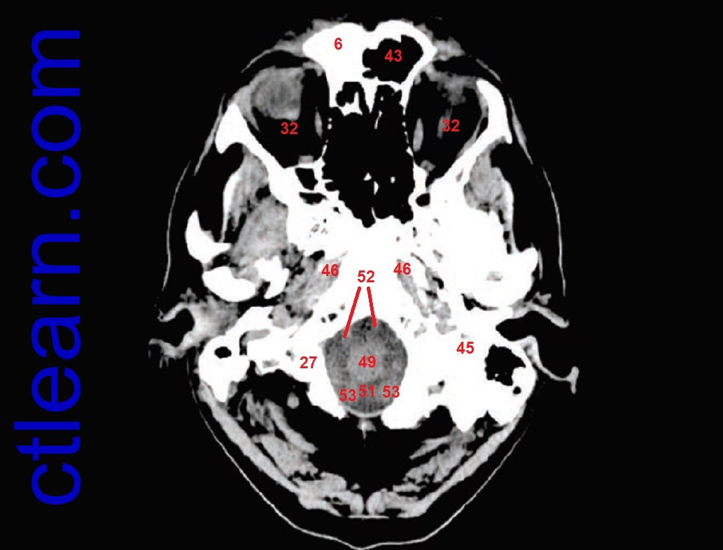 Head CT Interpretation Made Easy - YouTube